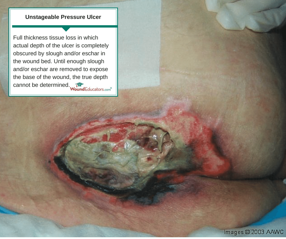 Unstageable Pressure Ulcer Woundeducators Com