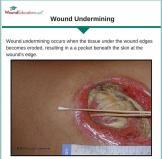 wound undermining wound care education